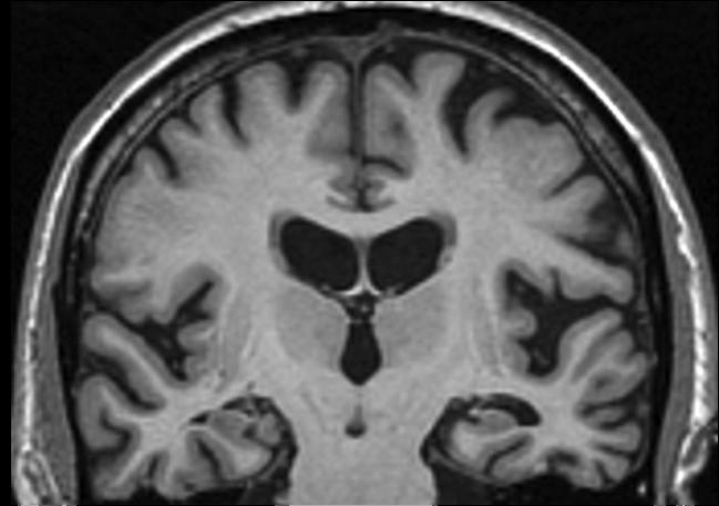 Seeing Dementia